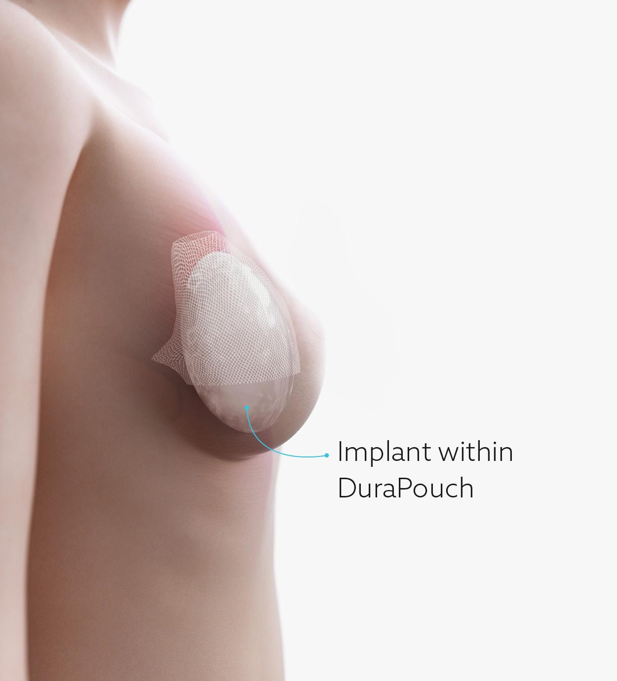 DuraPouch